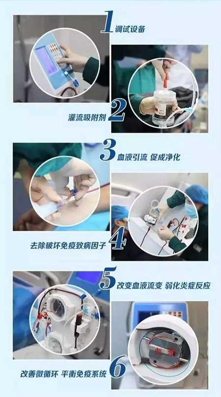 风湿免疫吸附技术