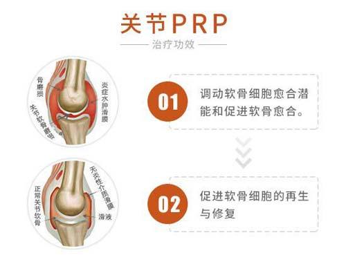 关节PRP技术治疗效果好